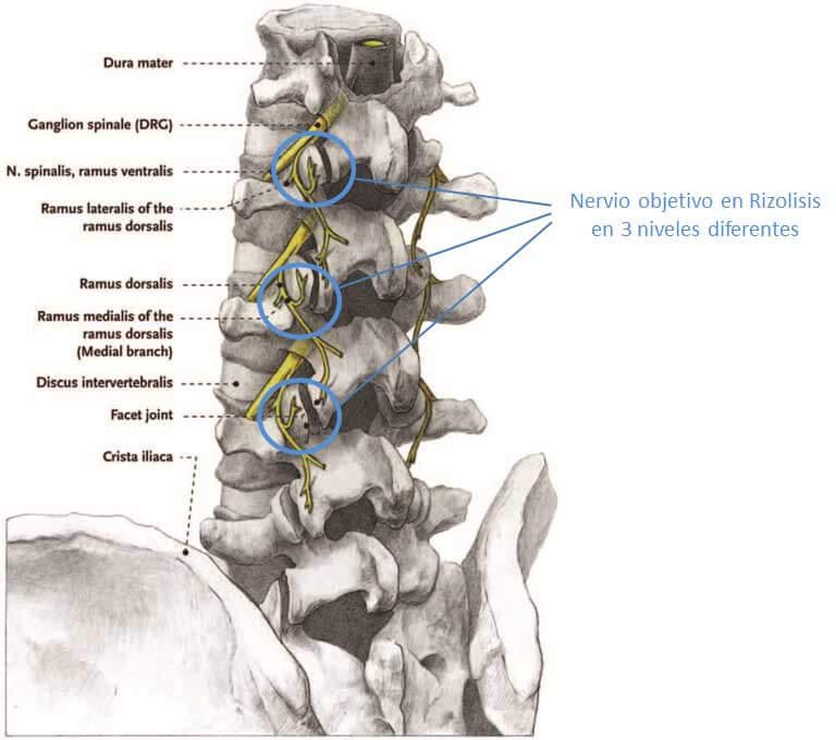 Nervios-objetivo-rizolisis-en-3-niveles